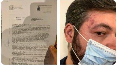 Photo of Dos marroquíes agreden a Rubén Pulido, jefe de prensa de VOX en el Parlamento de Andalucía